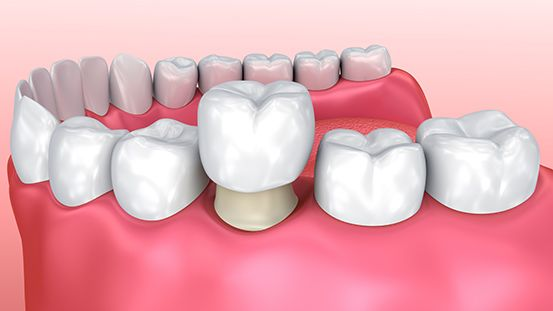 Zubna Protetika Stomatolo Ka Poliklinika Medikadent