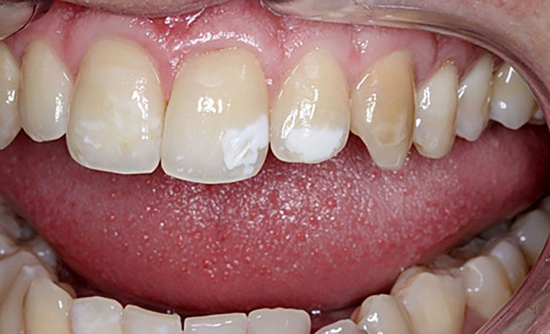 Zašto imam bijele mrlje na zubima?